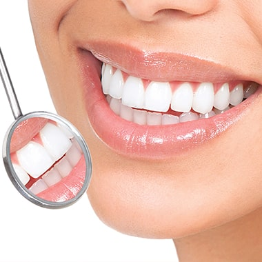 Blanchiment des dents - Dental Care Costa Rica