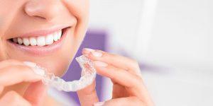 Invisalign Clear Aligners La solution d'alignement dentaire transparente