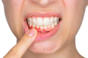 parodontie-parodontiste
