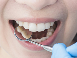 dentisterie générale plombages composite