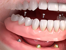 implant dentaire implants dentaires all-on-4