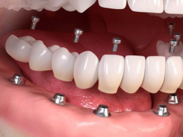 implant dentaire implants dentaires all-on-6
