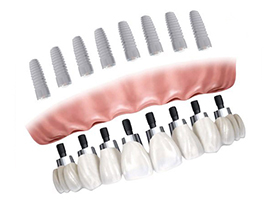 implant dentaire implants dentaires all-on-8