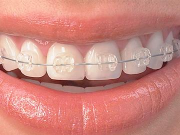orthodontie différents types bagues dentaires céramiques