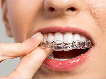 orthodontie différents types brackets esthétiques orthodontique