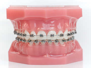 orthodontie différents types brackets métalliques