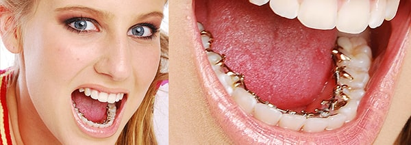 orthodontie linguale invisible