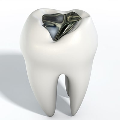 plombages prix dental care costa rica