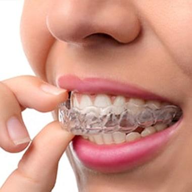 Brackets Esthétiques Orthodontique Orthodontie Transparente Invisalign pour Adulte