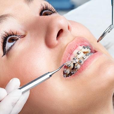 Brackets métalliques Orthodontique dentaires costa rica au meilleur prix