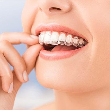 Invisalign Clear Aligners dental care costa rica