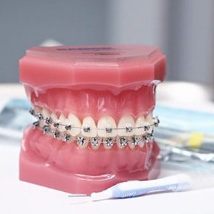 Orthodontie différents types Orthodontie différents types